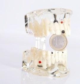 Zahnmodell aus unterschiedlichen Materialien