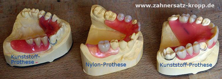 Zahnprothese: Vergleich Kunststoff und Nylon